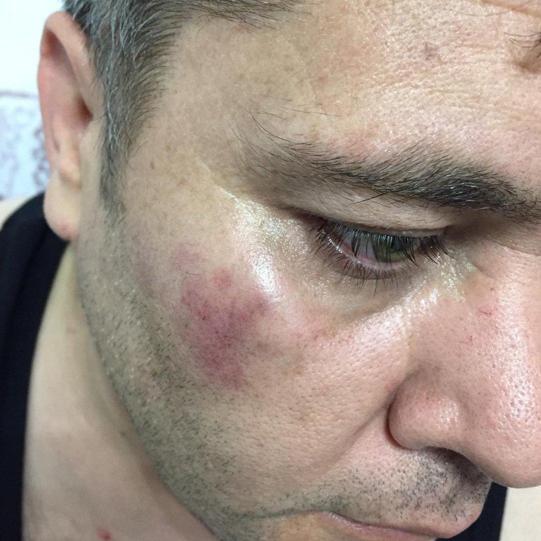Gazeteciye Yumruklu Saldırı