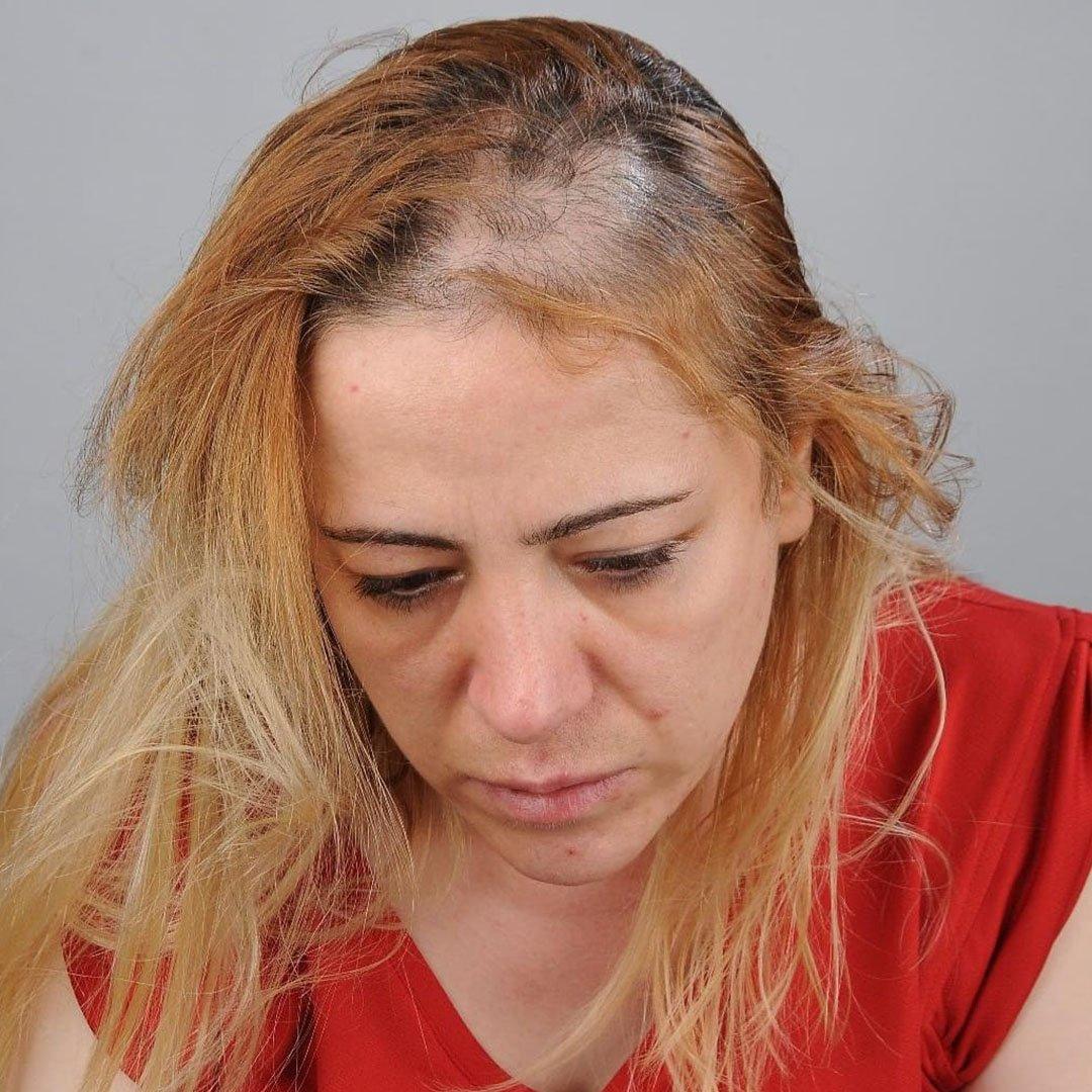 Kadın hasta, hemşireye önce küfürler savurdu, sonra da saçlarını yoldu